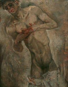 max-oppenheimer. bleeding-man1911
